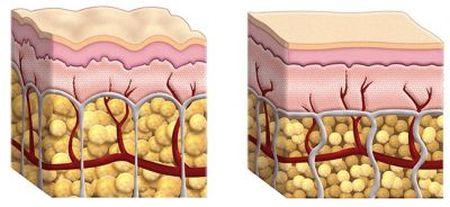 Schemat warstw skóry z zrazikami tłuszczowymi
