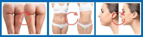 Koncentrat w aktywny sposób redukuje cellulit